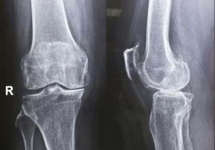 Hình ảnh chụp MRI khớp đầu gối
